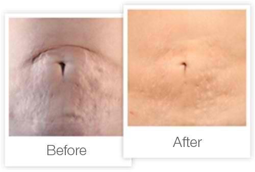 skin needling treatment before after