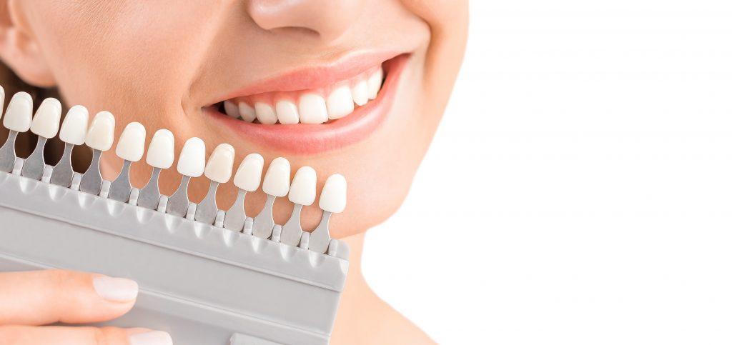 Zoom Teeth Whitening 1