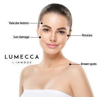 Lumecca - IPL 1